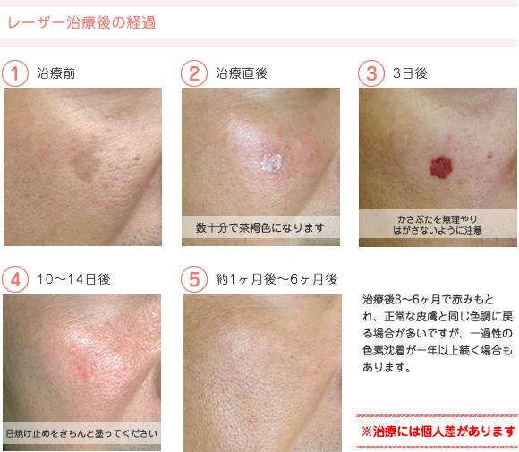 医療設備・症例 - いしかわ皮膚科 | 富士宮市北町(皮膚科専門 ...